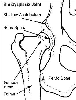 abnormal hip joint